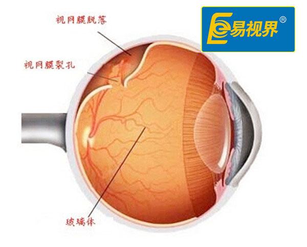 视网膜脱离与哪些因素有关
